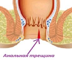 massazh-v-nizhnem-novgorode-eroticheskiy