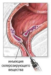 Удаление папиллом радиоволновым методом в казани эффективная косметология