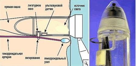 lechenie-gemorroya-dezarterizatsiya